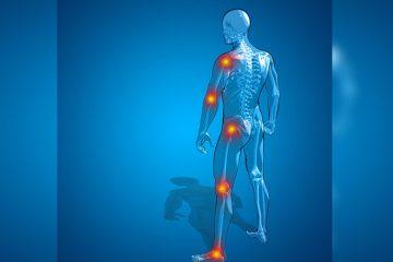 de ce facem reumatism