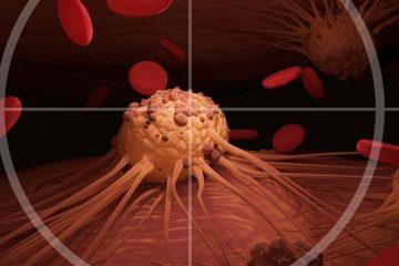 de ce apar celulele canceroase