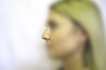 teama duce la boli ale nasului