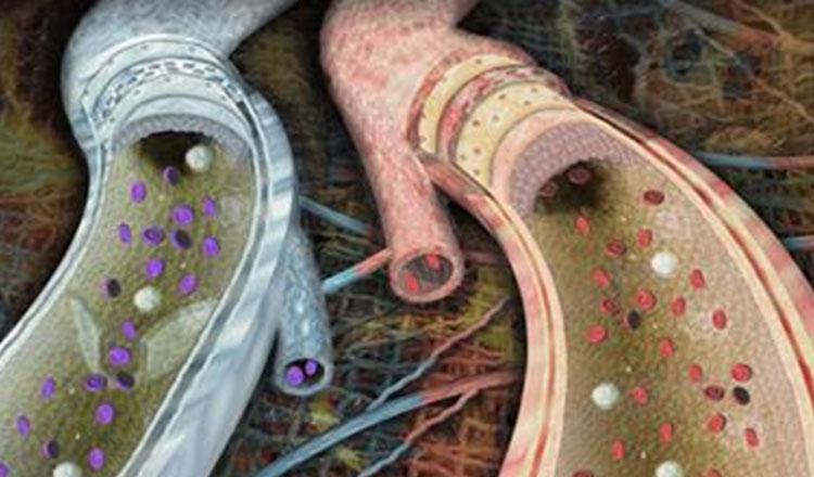 Boli vasculare cauze emotii