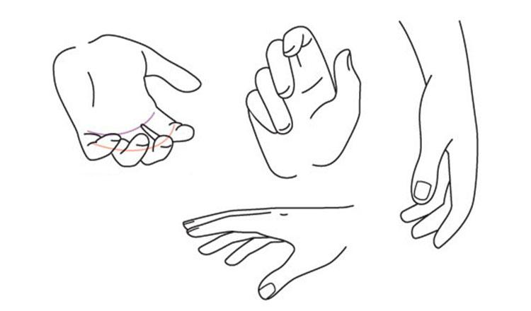 Sindromul de tunel carpian sau durerile încheieturii mâinii
