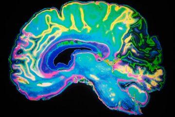 cum opresti creierul sa faca griji