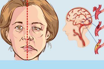 femeile fac mai des atac cerebral